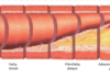 Diagram showing atherosclerosis