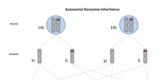 Autosomal recessive inheritance showing heterozygotes (Hh) and homozygotes (HH) and (hh). Note that H is dominant and h is recessive.