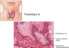 Diagram showing location of thyroid gland and structure of follicles