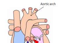 Diagram of the heart showing the location of the aortic arch